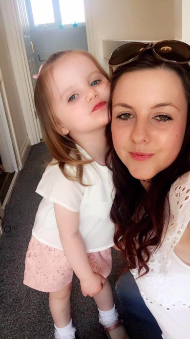 Paige Sweeney's daughter Evie-Rae has suffered from eczema since she was a baby [Photo: Facebook/Paige Sweeney]