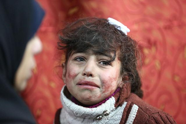 <p>Hala, 9, receives treatment at a makeshift hospital following Syrian government bombardments on rebel-held town of Saqba, in the besieged eastern Ghouta region on the outskirts of the capital Damascus on Feb. 22, 2018. (Photo: Amer Almohibany/AFP/Getty Images) </p>