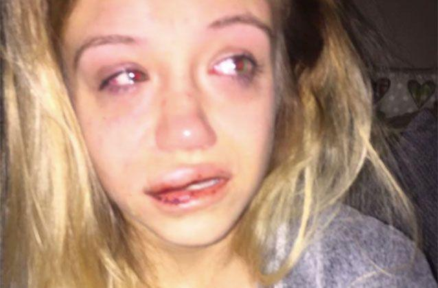 With a bruised face, Sophie Wakefield, 21, has told of how she can no longer sleep and is a nervous wreck since the violent home invasion. Picture: Facebook