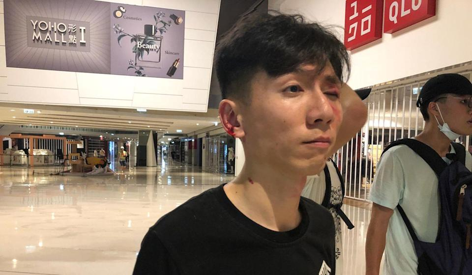A protester had wounds to his eye and ear after being attacked at the station. Photo: Jeffie Lam