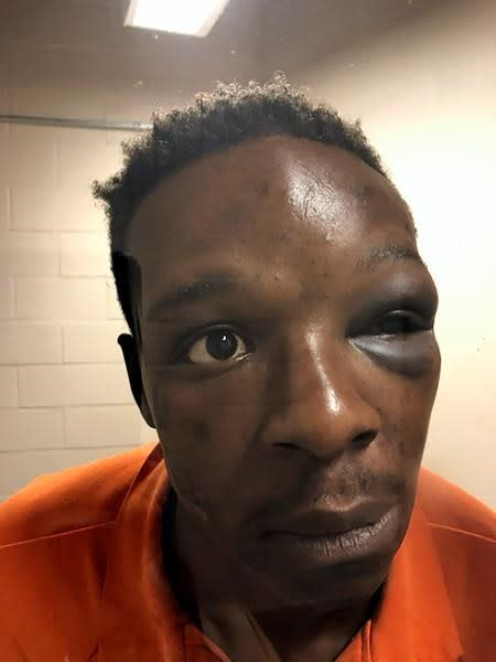 Sheriff: Deputy on video punching Black man in Georgia fired