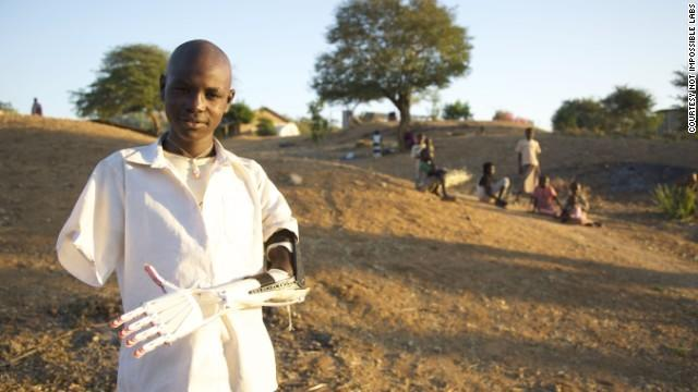 "<p>Mick Ebeling of Not Impossible Labs labs flew to Sudan in 2013 to show locals how to 3D-print inexpensive <a href=""http://www.cnn.com/2014/03/19/opinion/3d-print-arm-daniel/"">prosthetic arms</a>. <i>(Photo: Not Impossible Labs)</i></p>"