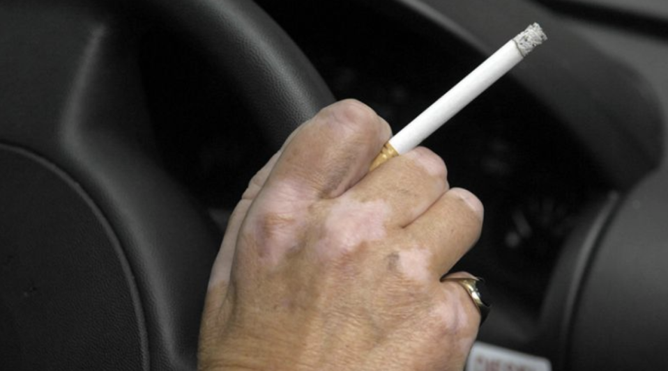 People can report drivers and passengers who discard their cigarette butts by throwing them out the window. Source: AAP