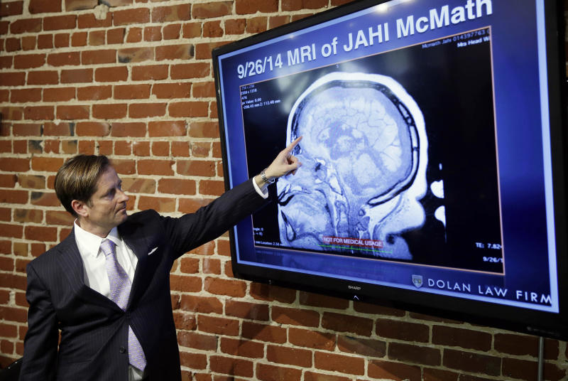 FILE - In this Friday, Oct. 3, 2014 file photo, Attorney Christopher Dolan points to a recent MRI of Jahi McMath during a news conference at his law office in San Francisco. New Jersey officials say McMath, the girl at the center of the medical and religious debate over brain death, has died from excessive bleeding. The girl's mother said Thursday, June 28, 2018, that New Jersey doctors declared Jahi McMath dead after an operation to treat an intestinal issue. A California coroner in 2013 ruled the then 13-year-old died after suffering irreversible brain damage during an operation to remove her tonsils. Her family did not accept the decision and opted to move her to New Jersey. (AP Photo/Eric Risberg, File)
