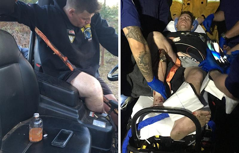 Rob Wells was driving his farm buggy when a tree branch came up from underneath and pierced straight through his leg. Source: Rob Wells