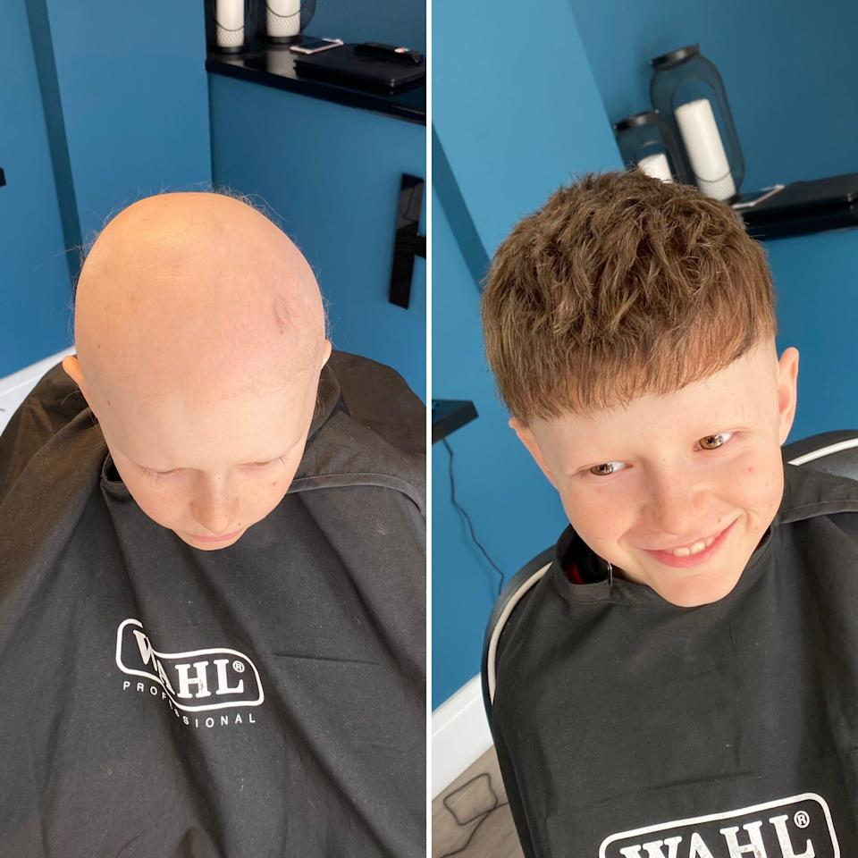 A nine-year-old boy who suffers from alopecia got a hair piece done by Thomas Walker at The Hair Repair Club in Derby, England.