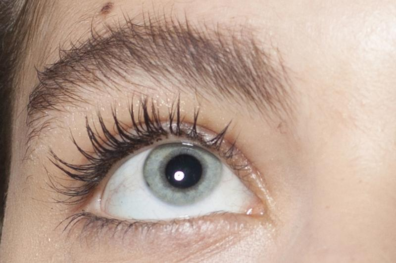 A Woman Found 100 Mites Living In Her Eyelashes After Not Washing