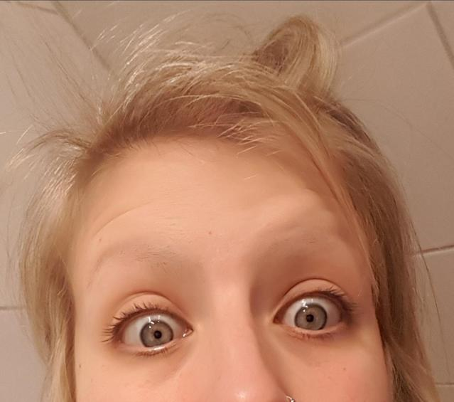 """No brows? No problem, according to this redditor who bounced back from her beauty mishap. (Photo: Courtesy of """"Lucky Lola"""")"""