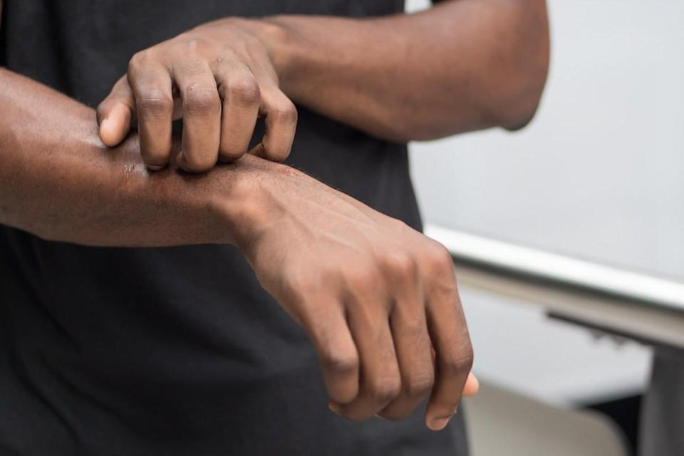 """Everyone has occasional itchiness. But all-over pruritus (the medical name for itchy skin) that is unexplained could be from something as simple as using a new laundry detergent or something as serious as <a href=""""https://bestlifeonline.com/warning-signs-liver-damage/?utm_source=yahoo-news&utm_medium=feed&utm_campaign=yahoo-feed"""" rel=""""nofollow noopener"""" target=""""_blank"""" data-ylk=""""slk:liver disease"""" class=""""link rapid-noclick-resp"""">liver disease</a>, Brayer explains. Eliminate any potentially irritating products and if the itchiness is still there, see your physician."""
