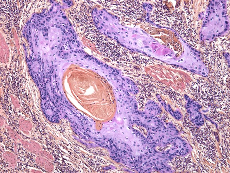 Basal cell, squamous cell, and melanoma are the three types of skin cancer. [Photo: Getty]