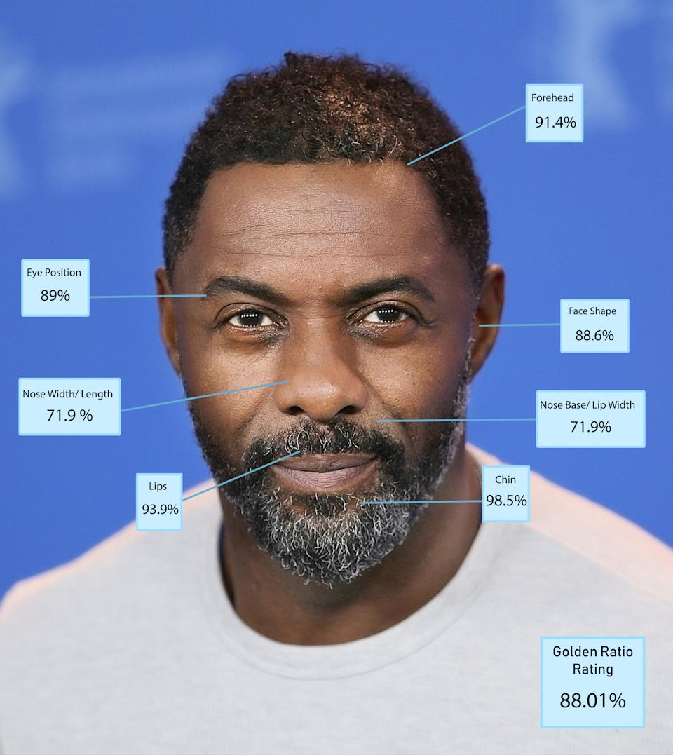 """According to Dr De Silva Idris Elba has a near-perfect chin and was just beaten by Becks in second place in that category. """"He also scored highly for his eye spacing which was also second overall but was marked down for nose and lip size ratio,"""" Dr De Silva explains [Photo: Dr Julian De Silva]"""