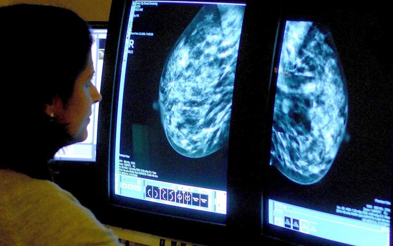 A consultant analyzing a mammogram - PA