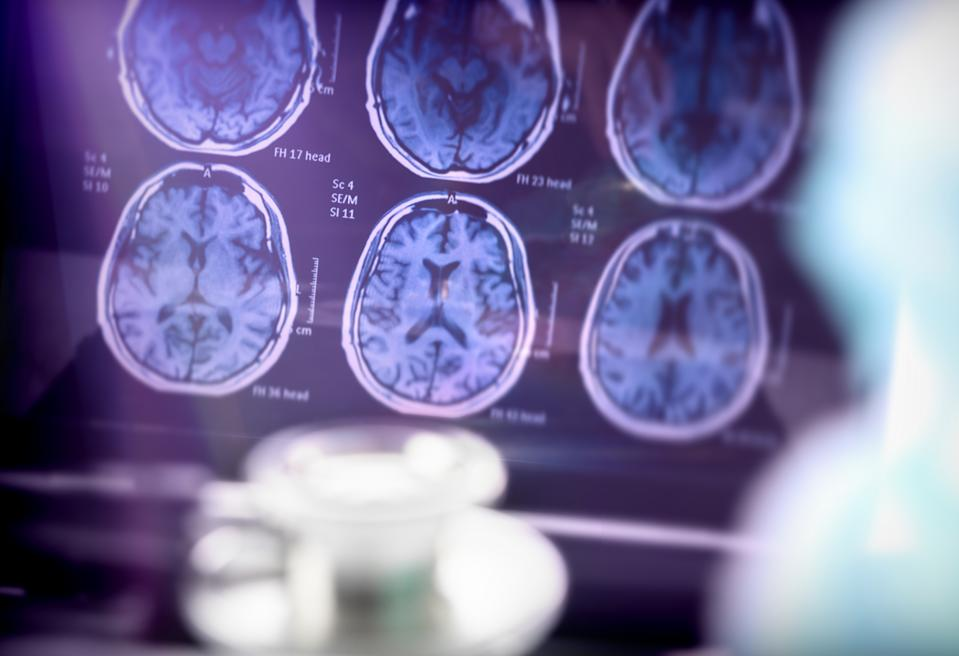 Alzheimer's, the most common form of dementia, is caused by the formation of plaques and tangles in brain cells.  (Getty Images)