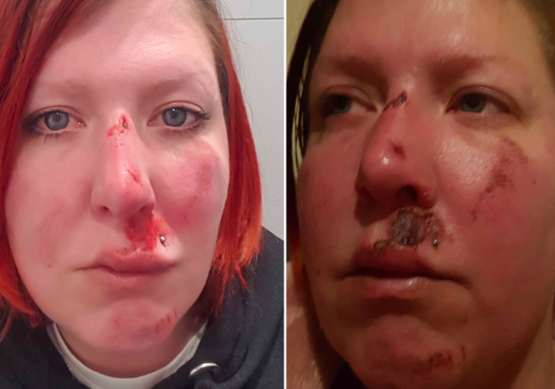 Charity volunteer Jen was left with a bloodied face and bruises all over her body (Caters)