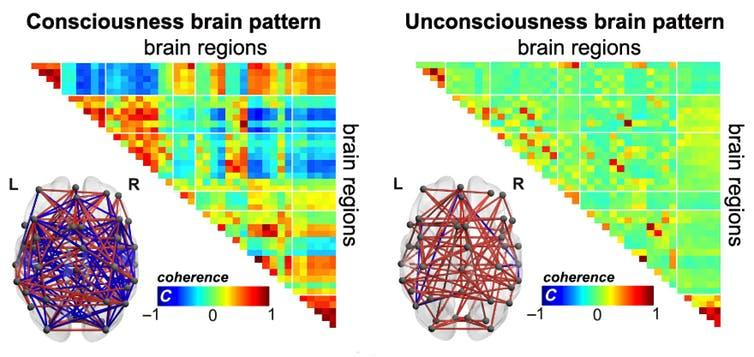 """<span class=""""caption"""">In consciousness and unconsciousness, our brains have different modes to self-organise as time goes by. When we are conscious, brain regions communicate with a rich temperament, showing both positive and negative connections.</span> <span class=""""attribution""""><span class=""""source"""">Credit: E. Tagliazucchi & A. Demertzi</span></span>"""