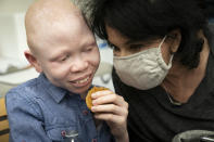 Baraka Cosmas, 12, has a cookie and relaxes with Elissa Montanti, founder and director at The Global Medical Relief Fund, left, after receiving a COVID-19 vaccination at Richmond University Medical Center, Friday, June 4, 2021, in the Staten Island borough of New York. Some of the children brought to the hospital in Montanti's group, all amputees who have faced severe trauma in their lives, were nervous before receiving in the injection in an unfamiliar setting. (AP Photo/John Minchillo)