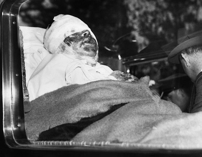 <p>Horribly burned when his ship went up in flames, Capt. Max Pruss of the ill-fated dirigible airship Hindenburg, is shown in an ambulance en route to a New York hospital, May 7, 1937. (AP Photo) </p>