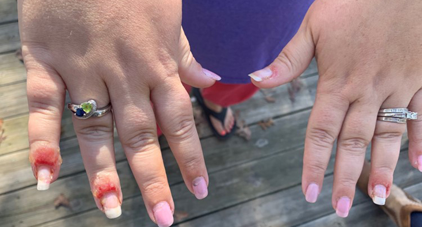 Dip Powder manicure nail infection