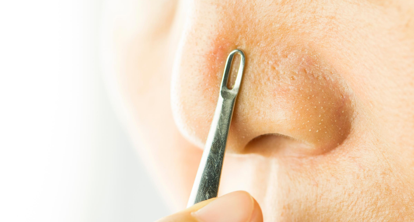 This 'oddly satisfying' blackhead extractor is on sale for just $10 right now