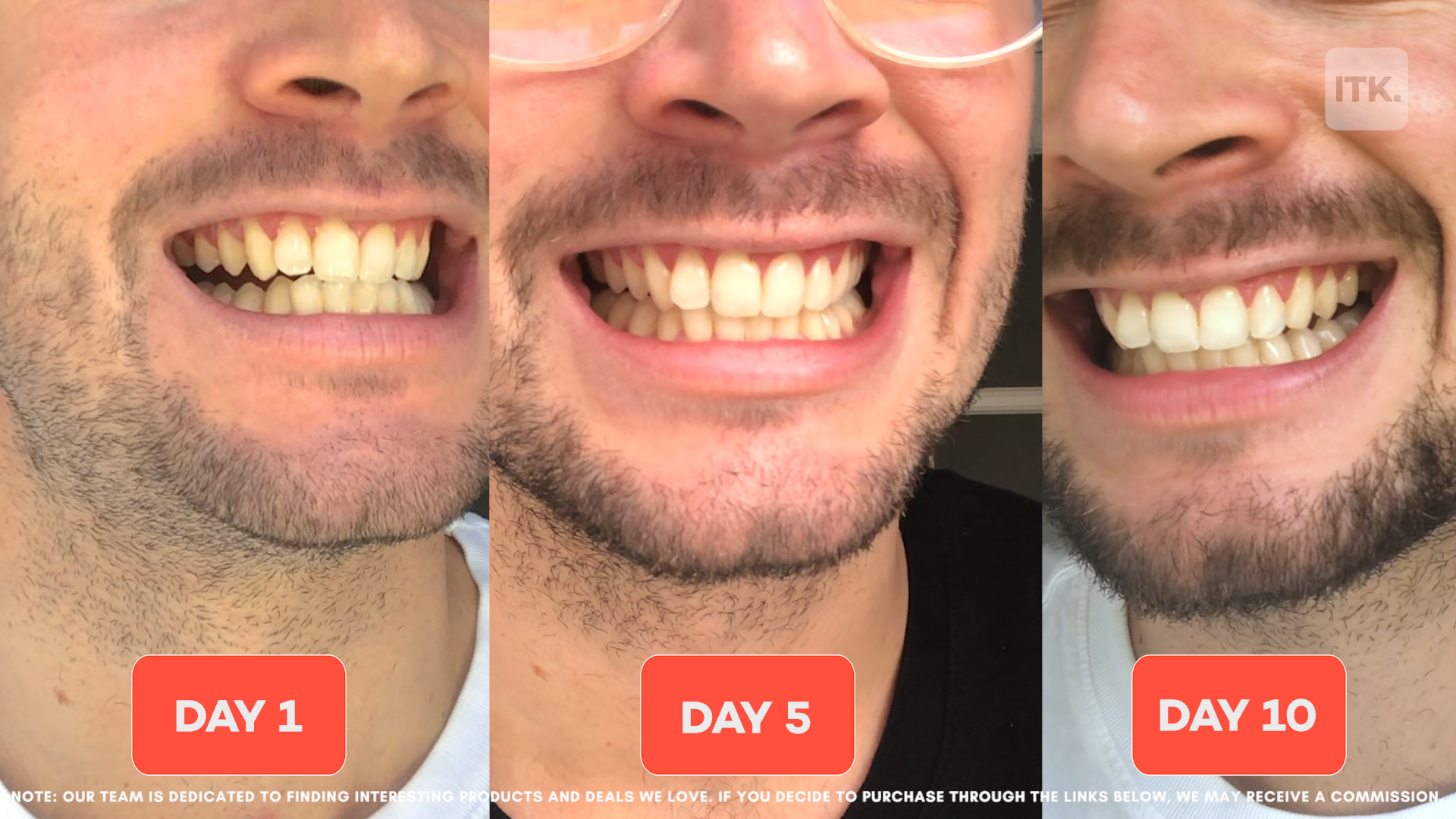We Tried Colgate S Latest Teeth Whitening Device That Claims To Whiten Teeth By 6 Shades In 10 Days Does It Work