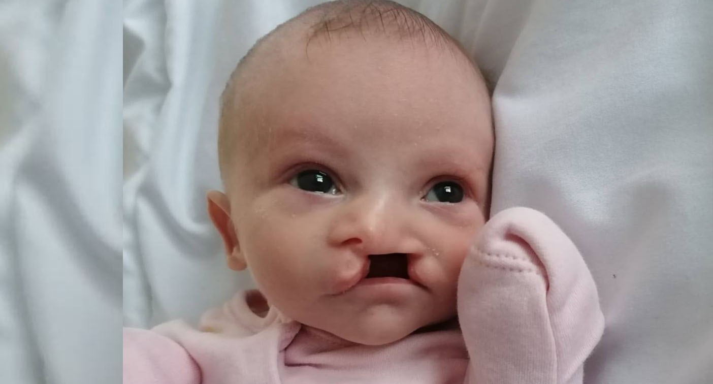 Tragedy as two-week-old baby girl born with cleft lip 'murdered'