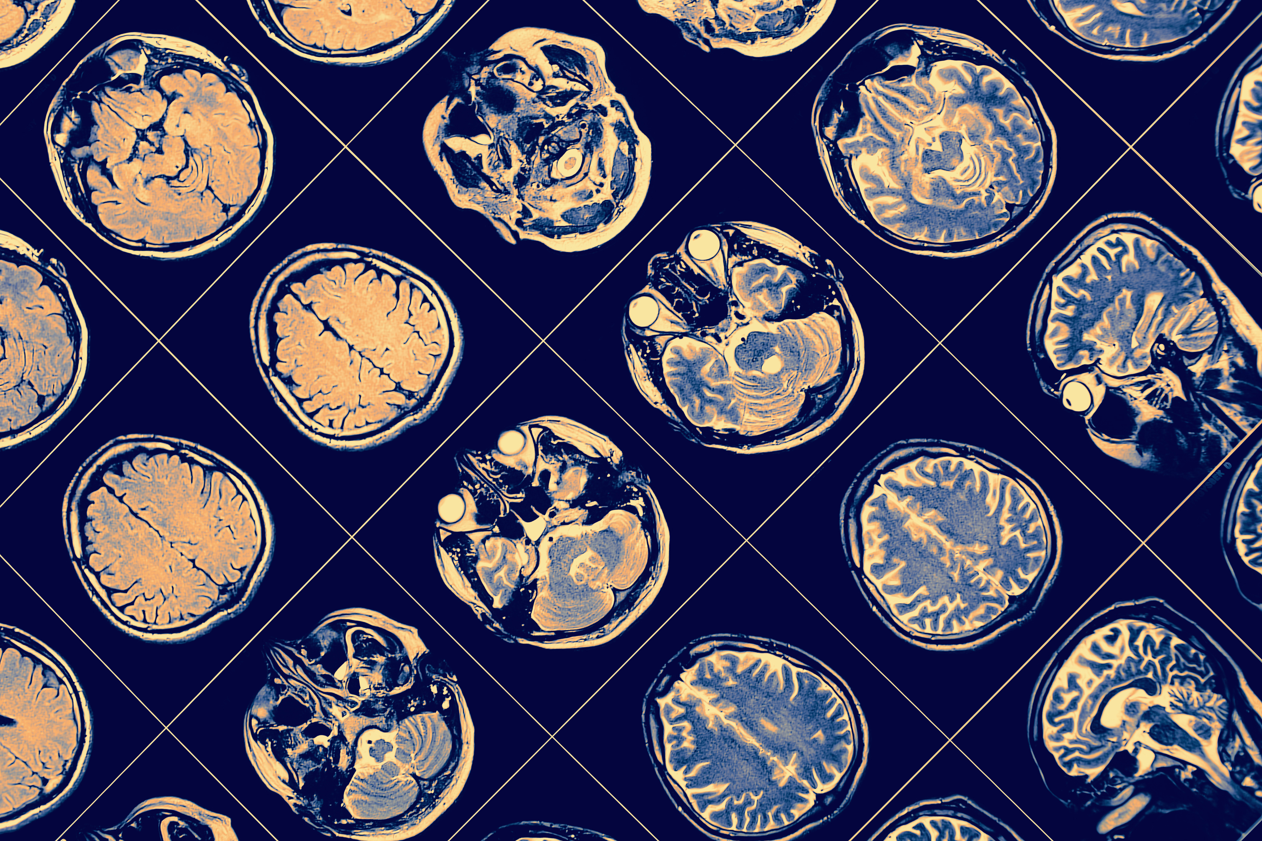 IBM's AI can predict how Parkinson's disease may progress in individuals