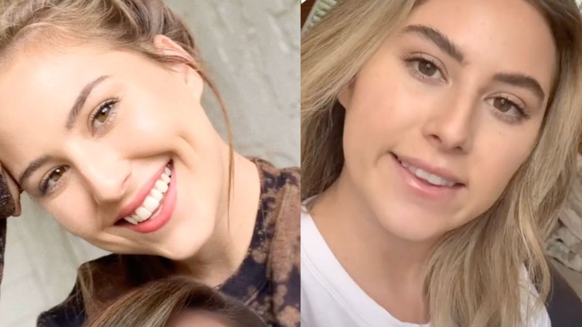 Woman goes viral on TikTok after revealing how a Botox alternative mishap left her with a 'botched' smile - Yahoo Lifestyle