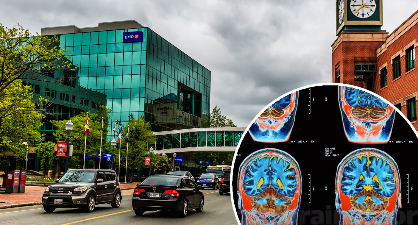Bizarre brain syndrome in small town stumps Canadian doctors
