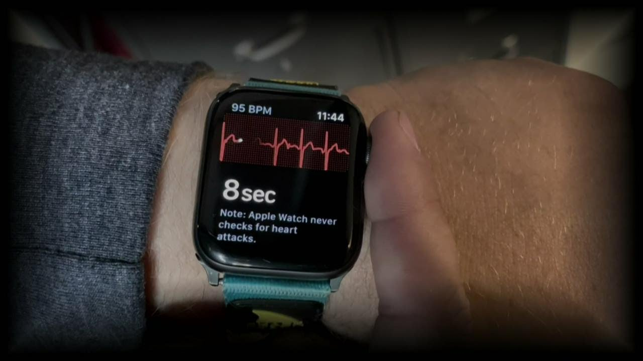 Apple Watch saves Woman's life by informing her of an asymptomatic heart attack