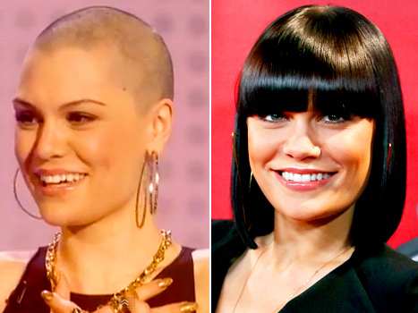 Jessie J Shaves Her Head Bald for Charity: Picture