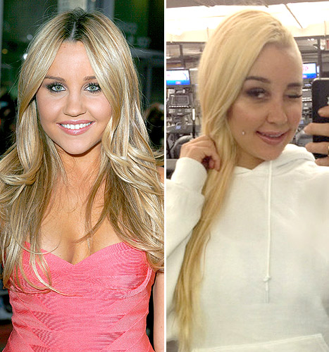 """Amanda Bynes Says She Got a Nose Job to Fix """"Webbing in Between"""" Her Eyes"""