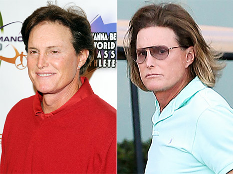 "Bruce Jenner's Adam's Apple Surgery: He's ""Always Been Obsessed With His Looks"""