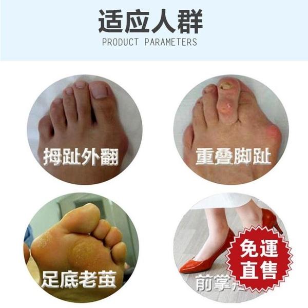 分趾器 矯正器大腳骨大腳趾重疊分趾器前掌墊防磨腳可穿鞋  【全館免運】