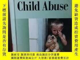 二手書博民逛書店Child罕見Abuse (Current Controvers