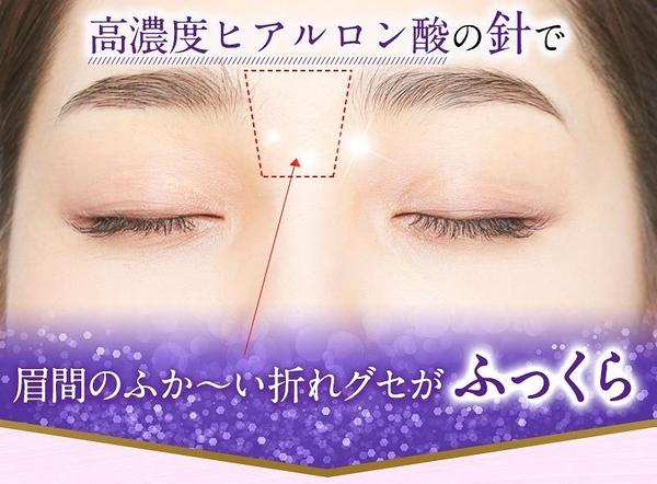 日本【北部快適工房】MIKEN DEEP PATCH 眉間保養貼片 8片入