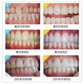 美牙儀冷光牙齒速效去黃牙氟斑牙牙齒儀套裝白牙神器 免運快速出貨