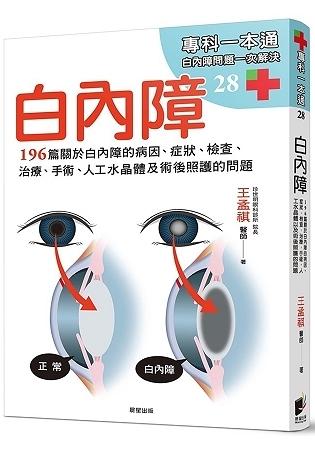 白內障:196篇關於白內障的病因、症狀、檢查、治療、手術、人工水晶體以及術後照護