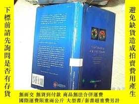 二手書博民逛書店NEW罕見VESSELS FOR THE HEART 心臟新血管 (56)Y203004