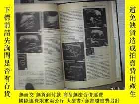 二手書博民逛書店INTERNATIONAL罕見JOURNAL OF FERTILITY 1973 VOL 18 國際生育雜誌197
