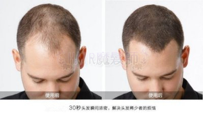 (現貨)魔髮粉 美國 增髮纖維假髮 黑色 咖啡色 25g 長頭髮 生髮 稀髮 禿頭 髮粉 髮量濃密