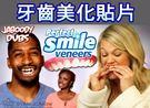 【當日出貨】 Perfect smile veneers 美齒牙套 貼片 假牙片 假牙套 矽膠美齒貼 【A32】