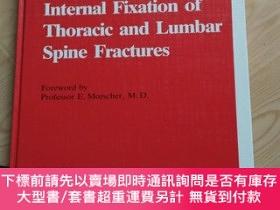 二手書博民逛書店Internal罕見Fixation of Thoracic and Lumbar Spine Fractures