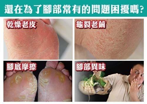 【Instyle腳皮機】 快速滾輪去腳皮機 橘色 快速改善腳部龜裂與角質粗糙