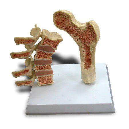 JP-501成人脊椎,股骨骨質疏鬆模型(實用的人體模型/人骨模型/骨骼模型/關節模型/教學模型)