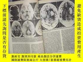 二手書博民逛書店ANNALS罕見OF INTERNAL MEDICINE 1979 VOL 90 JULY-DEC 內科學年鑒19