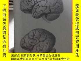 二手書博民逛書店英文書罕見brain development and thyrold deficiency腦發育與甲狀腺素缺乏