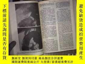 二手書博民逛書店THE罕見RADIOLOGIC CLINICS OF NORTH AMERICA VOL 9 1971 北美放射診