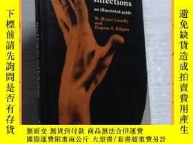 二手書博民逛書店英文書罕見hand injuries and infection 手部受傷和感染Y16354 請見圖片 請見圖