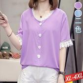 雷絲花邊領白排釦上衣(2色) XL~4XL【384052W】【現+預】-流行前線-