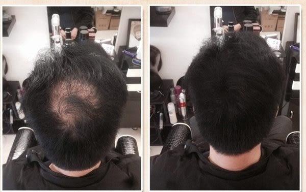 Dexe 增髮纖維 解決脫髮 禿髮的睏擾!